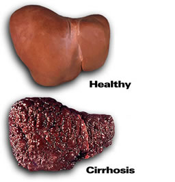 photo of a healthy liver and a liver with cirrhosis - liver damage from alcohol - hired power breakaway